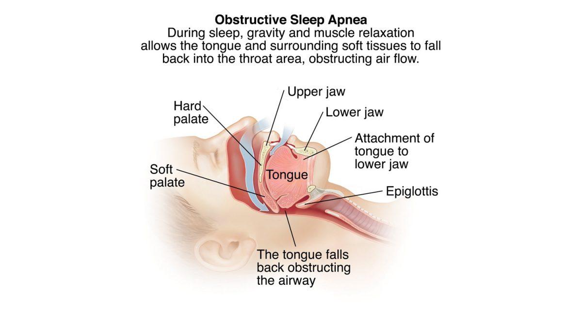 obstructive_sleep_apnea_hr